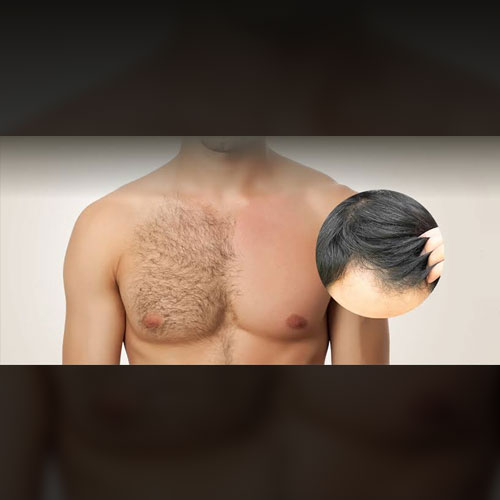 Body Hair Transplant in Abul Fazal Enclave