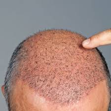 Hair Loss Treatment in Vishnu Garden