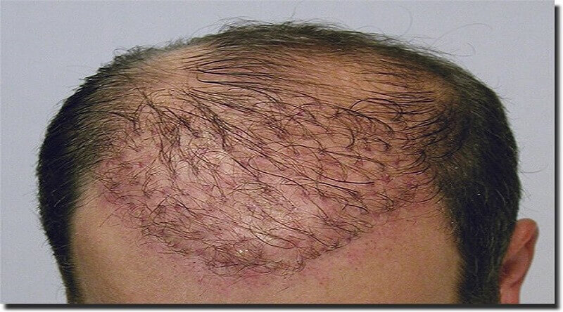 Hair Transplant Repair in Mandoli