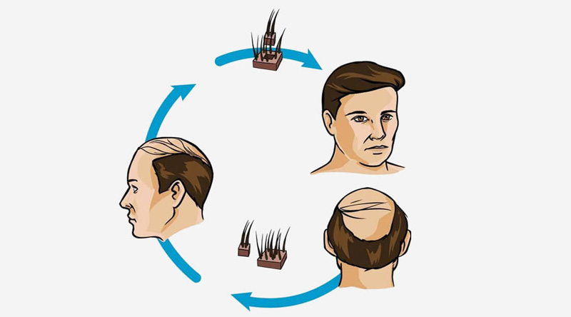 What is Hair Transplant in Chitranjan Park