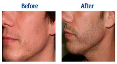Beard hair transplant in Delhi