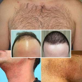 Body Hair Transplant in Vasant Vihar