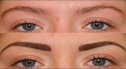 Eyebrow Hair Transplant in Akshardham Temple