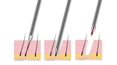 FUE Hair Transplant in Connaught Place