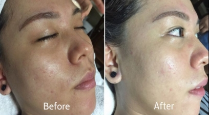 Glow treatment in Delhi