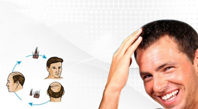 Hair Transplant Cost in Pushp Vihar