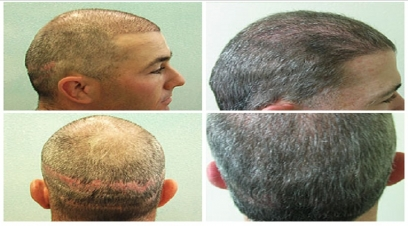 Hair transplant repair in Delhi
