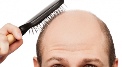 Types of Hair Loss in Naraina Village