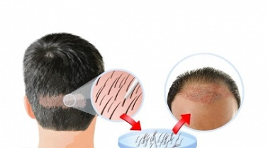 What is Hair Transplant in Bahadur Shah Zafar Marg