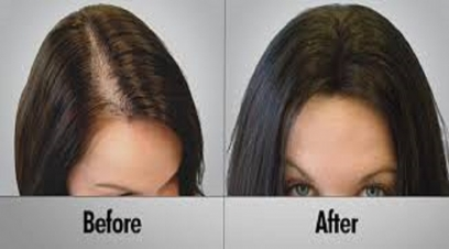 Women Hair Transplant in Naraina Village